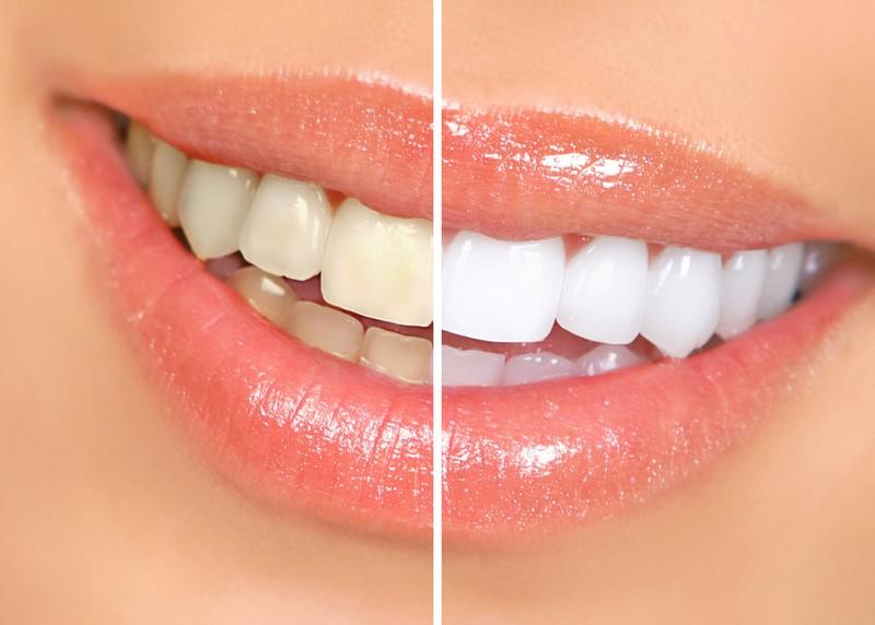 Teeth Whitening  Missoula, MT